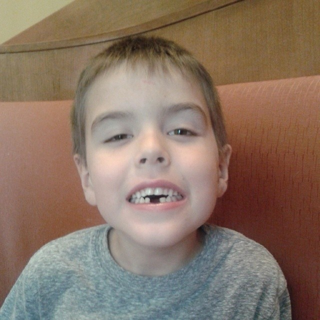 Now we have 2 lost teeth!